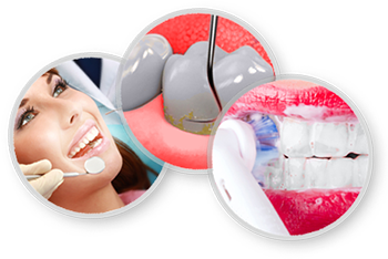 dental-cleanings-prevention